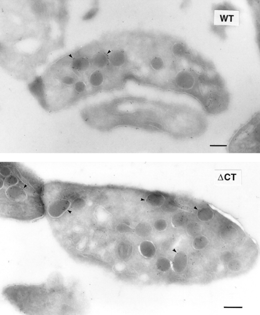 Localization of ΔCT–P-selectin in platelets by electron microscopy. Indirect immunogold labeling of P-selectin was performed  in resting platelets from wild-type (WT) and ΔCT mice. Ultrathin frozen sections were stained with a rabbit antibody against P-selectin  and visualized with a goat anti–rabbit IgG conjugated to 10-nm colloidal gold particles. The majority of the gold particles are associated  with α-granules (arrowheads) in both wild-type and ΔCT platelets. A small amount of labeling was seen on the plasma membrane in  both genotypes. Bars, 200 nm.