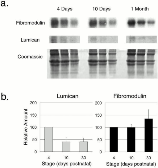 Lumican and fibromodulin content during normal tendon development. (a) A representative semiquantitative Western analysis of lumican and fibromodulin during development in the normal mouse tendon is presented. Tendons were extracted in 4 M guanidine-HCl at 4 d, 10 d, and 1 mo. 80, 40, and 20 μg of total protein from each time point were loaded onto the gel. The core proteins were transferred, reacted with antilumican or antifibromodulin antisera followed by radiolabeled goat anti–rabbit IgG, and quantitated using phosphoimaging. A duplicate gel stained with Coomassie shows similar amounts of type I collagen in the extracts. (b) The relative lumican and fibromodulin content in the tendon at 4 d, 10 d, and 1 mo postnatal were derived from three independent experiments. The mean values for both lumican and fibromodulin were set to 100 at 4 d and the results were plotted as a function of development (bars indicate SD).