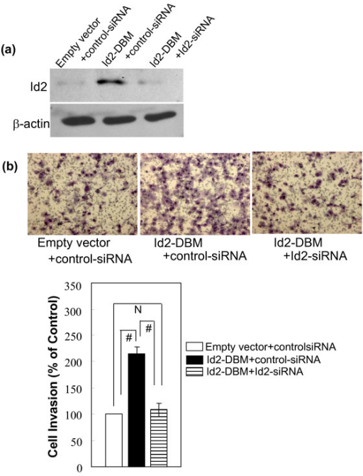 "(A) Effect of Id2-specific siRNA transfection on the expression of the exogenous Id2-DBM protein in MCF-7 cells. The indicated siRNA oligonucleotides were transfected into the indicated MCF-7 cells. 48 h after transfection, total proteins were extracted and subjected to immunoblotting analysis with Id2-specific antibody. β-actin was used as the loading control. (B) Effect of knock down of exogenous Id2-DBM by RNA interference on in vitro invasion of MCF-7 cells. The indicated siRNA oligonucleotides were transfected as described in (A). 48 h after transfection, MCF-7 cells were subjected to performing Transwell experiments. The top panel shows representative pictures of Transwell assays, as described in ""Methods"". Each data was performed in triplicate and was repeated three times. Data are expressed as the percentage of the control cells (mean ± SEM, the bottom panel). (# P <0.01; N P > 0.05)."