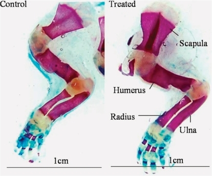 Photograph of Alizarin red S and alcian blue-stained forelimbs showing the ossified and unossified portions of bones in pups born to control or CQ petroleum ether extract-treated mothers. Note the increased lengths of the humerus, radius, and ulna in the treated group. Scale bar = 1 cm in both photographs