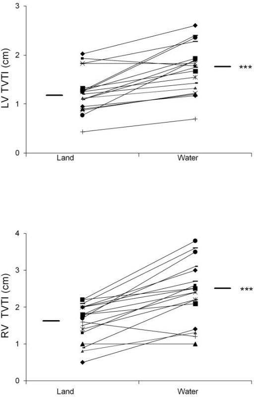 Improved biventricular function during warm water immersion. Individual data are shown for each patient on land and in warm water. Mean values are indicated. 1A. Left ventricular tissue velocity time integral, ***p < 0.001, land vs. warm water immersion. 1B. Right ventricular tissue velocity time integral, ***p < 0.001, land vs. warm water immersion.