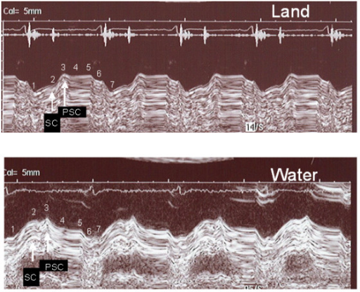Decreased postsystolic contraction during warm water immersion. A patient with left bundle branch block demonstrates a different pattern of the left atrioventricular plane recording on land compared with water. 2A. Standing position on land, AVPD 3.5 mm, post-systolic contraction 6.1 mm. 2B. Standing position in warm water, AVPD 8.2 mm, post-systolic contraction 1.4 mm. 1) Start of LV contraction; 2) end of LV contraction; 3) start of early diastolic filling; 4) end of diastolic filling, beginning of diastasis; 5) end of diastasis, beginning of atrial contraction; 6) end of atrial contraction. 7) start of next contraction. AVPD: atrioventricular plane, SC: systolic contraction, PSC: post-systolic contraction.
