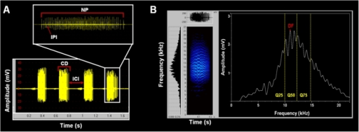 Stridulatory signal of a Pachycondyla apicalis species complex worker.(A) Oscillogram of a series of chirps, showing the chirp duration (CD), the inter-chirp interval (ICI), the number of pulses (NP) in a chirp and the inter-pulse interval (IPI). (B) Spectrogram of a chirp, showing the dominant frequency (DM) and the quartiles of frequencies at 25, 50 and 75% of the signal energy (Q25, Q50 and Q75 respectively).