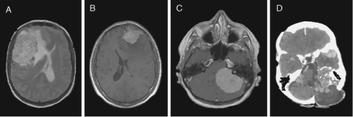 Radiological appearances of meningiomas. a Magnetic resonance imaging (MRI) showing a large convexity meningioma with edema and displacement of the midline to the anatomical left. b MRI section illustrating a WHO grade I convexity meningioma invading the frontal bone. c Large meningioma arising in the cerebello-pontine angle compressing the brain stem. d Computerized tomography showing multiple meningiomas and postoperative changes in a patient with neurofibromatosis type 2