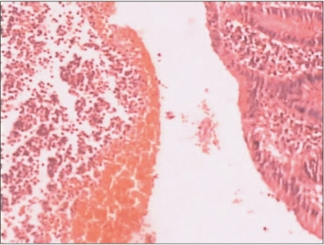 Microscopic examination of the resected appendix revealing a large number of erythrocytes and background erosive lesions in the mucosal layer and surrounding inflammatory infiltrates on the left side (H&E stain, ×200).