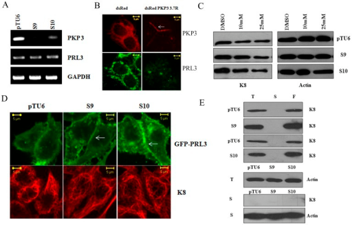 Plakophilin3 loss leads to an increase in PRL3 levels.A. RNA prepared from the vector control or PKP3 knockdown clones was used as a template in reverse transcriptase coupled PCR reactions to determine the mRNA levels of PRL3 and PKP3. A PCR for GAPDH served as a loading control. B. S9 cells were transfected with either dsRed or the shRNA resistant dsRed PKP3 3.7R cDNA. 48 hours post transfection cells were stained with antibodies to PRL3 (green) and visualized by confocal microscopy. Note that dsRed PKP3 3.7R localizes to the border as previously described (indicated by arrow) [28]. Original magnification is 630X with a 2X optical zoom. Scale bar 5 µm. C. The vector control or PKP3 knockdown clones were treated with either the vehicle control (DMSO) or the indicated concentrations of the PRL3 inhibitor. Protein extracts were resolved on gels followed by Western blotting with antibodies to K8 and β-actin. D. GFP PRL3 was transfected into either vector control (pTU6) or PKP3 knockdown clones (S9 and S10). 48 hours post transfection, the cells were stained with antibodies to K8 (red) and visualized by confocal microscopy. Note that GFP PRL3 shows a marginally enhanced localization to the border in S9 and S10 cells in contrast to pTU6 and doesn't show increased localization on K8 filaments. Original magnification is 630X with a 2X optical zoom. Scale bar 5 µm. E. Total cell extracts (T), Soluble fractions (S) and the filament fractions (F) were prepared as described from either the vector control or PKP3 knockdown clones. Equal cell equivalents of these extracts were loaded on 10% SDS-PAGE gels followed by Western blotting with antibodies to K8 (top four panels). A Western blot for β-actin was performed in the total cell extracts as a loading control (fifth panel). 100 µg of soluble fractions were resolved on SDS-PAGE gels followed by Western blotting for K8 or β-actin (bottom two panels).