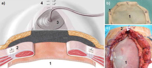 a Schematic presentation of stage 2; b the two-component mesh (1) with PGA hem seam (1′); c Operation site of the two-component mesh in IPOM position (1) as well as transfascial suture fixation with pledget (2′). (1) and (1′) = two-component mesh in IPOM position with the PGA layer underneath; (2) and (2′) = transfascial suture with pledget; (3) = Vacuum packing with polyurethane sponge tucked laterally between the fascia and subcutaneous tissue; (4) = Donati suture of the skin wound ending