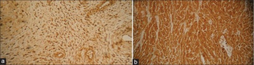 Immunohistochemistry of granular cell tumor of neurohypophysis confirming the diagnosis, (a) Positive for S100, (b) positive for neuron-specific enolase