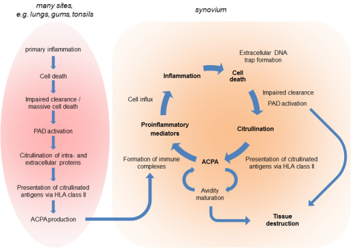 Citrullination-related immunity and pathophysiology in rheumatoidarthritis. In genetically susceptible individuals, an environmental factormay initiate a primary inflammation, which can occur in various tissues, andtrigger the immune response to citrullinated proteins (left). The resultinganti-citrullinated protein/peptide antibodies (ACPAs) are distributed through thecirculation and may form immune complexes with citrullinated proteins produced inan inflamed synovium, thereby boosting the inflammatory process. This will beassociated with the infiltration and activation of neutrophils, macrophages, andlymphocytes; cell death; extracellular DNA trap formation; the activation andrelease of peptidylarginine deiminases (PADs); de novo citrullination;and diversification of the ACPA response. Besides the commoninflammation-associated mediators of tissue destruction (not shown), ACPAs andPADs can be directly involved in these processes. HLA, human leukocyteantigen.