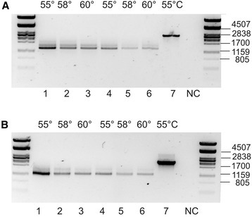 PCR amplification with theLCB-1-P lyasespecific primers. An agarose gel (1.2%) electrophoresis of PCR fragments amplified from the gene encoding LCB-1-P lyase (isogroup 000007) in U. vulgaris with different templates. 1–6: cDNA prepared from RNA extracted from two different plant individuals, 7: genomic DNA. NC: negative control with water instead of DNA. (A) PCR with exon-specific primers UV405_F1 and UV405_R1. (B). PCR with intron-specific primer UV405_F2 and exon-specific primer UV405_R1. Annealing temperature is indicated above the lanes. Standard of molecular weights is shown on the both sides of the gel.