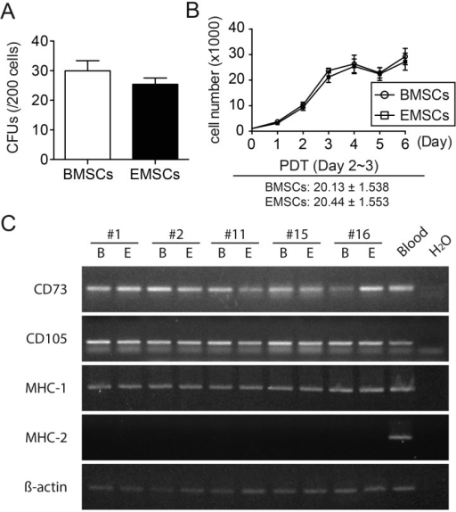 Comparisons between EMSCs and BMSCs. (A, B) The MSCs established by bone biopsy andbone marrow aspiration had similar CFE (A) and PDT (B). (C) RT-PCR indicated that bothBMSCs (B) and EMSCs (E) from donor #1, #2, #11, #15 and #16 at TCAPO express CD73 andCD105, which are typical MSCs positive markers. Moreover, all MSCs express MHC-1, butnot MHC-2. There was no discernible difference between the MSC populations establishedby these two methods. β-actin was used as the loading control. A blood sample fromdonor #27 (Blood) at TCAPO was used as a positive control, while no template reactions(H2O) were done as a negative control to all reactions markers.