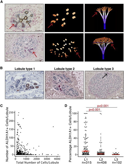 Representation of ALDH1A1+ Cells Is Higher in Immature Mammary Lobules(A) Localization of ALDH1A1+ cell in the mammary lobule based on comparison of virtual sections with equivalent immunostained tissue sections. Arrows, ALDH1A1+ areas; brown staining, ALDH1A3 (upper left).(B) In situ detection of ALDH1A1 (red or red-brown) in lobule types 1–3. Pictures show examples of representative lobules of each type. Arrow indicates rare ALDH1A1+ cells in lobule type 3. Scale bar, 100 μm. Representative examples from 18 different mammoplasty samples are shown.(C) Scatter plot with number of ALDH1A1+ cells in each lobule section plotted against the total cell number in the same lobule. Data combined from 18 different patient samples. Total number of lobules analyzed is 853.(D) Percentage of ALDH1A1+ cells in lobule types 1–3. Each dot represents one lobule. Error bars represent mean ± 95% confidence interval. P values between groups were calculated using one-way ANOVA with Tukey's multiple comparisons test.See also Figure S6.