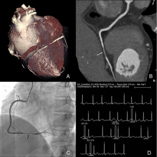 Prospectively ECG-triggered dual-source CCTA of a 57-year-old woman with AF.Mean HR was 100 bpm (range, 68–137 bpm). Images reconstructed at 270 msec after R wave. Volume-rendered (A) and curved multiplanar reformation (B) images of RCA (white arrow) show atherosclerosis lesion (stenosis>50%) in distal segment. Conventional coronary angiogram (C) shows significant stenosis (>50%) in distal segment of RCA (black arrow). The ECG information (D) was recorded during data acquisition.