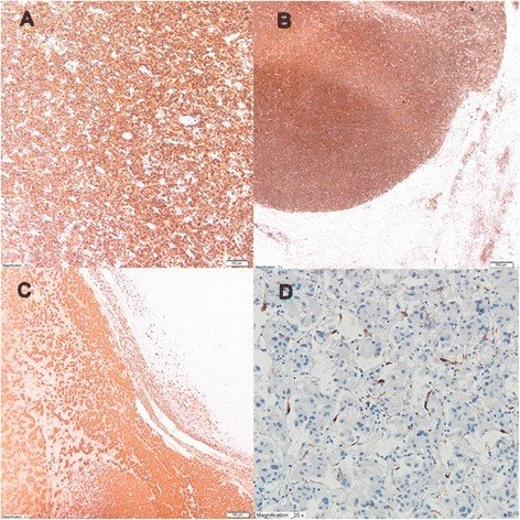 In the immunohistological study, tumor cells were positive for leukocyte antigen CD20(+) (b, magnification ×10) and CD45(+) (c, magnification ×2), and focus of pheochromocytoma was positive for chromogranin A(+) (a, magnification ×2) and S-100 (d, magnification ×20)