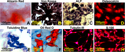 In vitro multilineage differentiation of PBMSCs.(A,B) Calcium deposits, orange-red color stained by alizarin red or black color stained by von kossa staining, were scattered in the osteogenic induced culture. (C,D) ALP and osteocalcin expression in the osteogenic cells were illustrated by ALP staining and immunocytochemistry. (E) aggrecan expressed in chondrogenesis induced cells was demonstrated by Toluidine blue staining. (F) lipid vacuoles in the adipogenesis induced cells were showed by Oil Red O staining. (G,H) induced neurons and Schwann cells were identified by immunocytochemistry with antibodies of β-tubulin III and S100.
