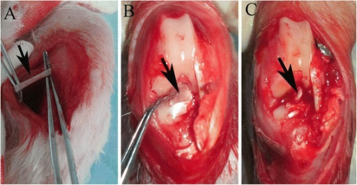 a Gross observations of the semitendinosus tendon (black arrow) and b native anterior cruciate ligament (ACL) (black arrow). c Macroscopic view of ACL reconstruction (arrow points to autologous semitendinosus tendon graft)