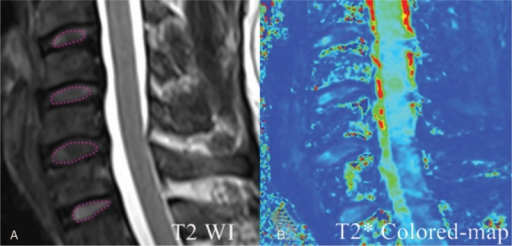For the representative intervertebral disc, regions of interests (ROIs) evaluation on the sagittal T2WI (A), an ellipse ROI was selected for the nucleus pulposus (NP). Then these ROIs inT2WI were copied to the T2∗ colored map (B). T2∗ values were measured.