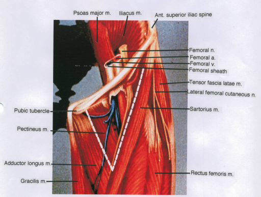 pubic tubercle; pectineus muscle; adductor longus muscl | open-i, Muscles