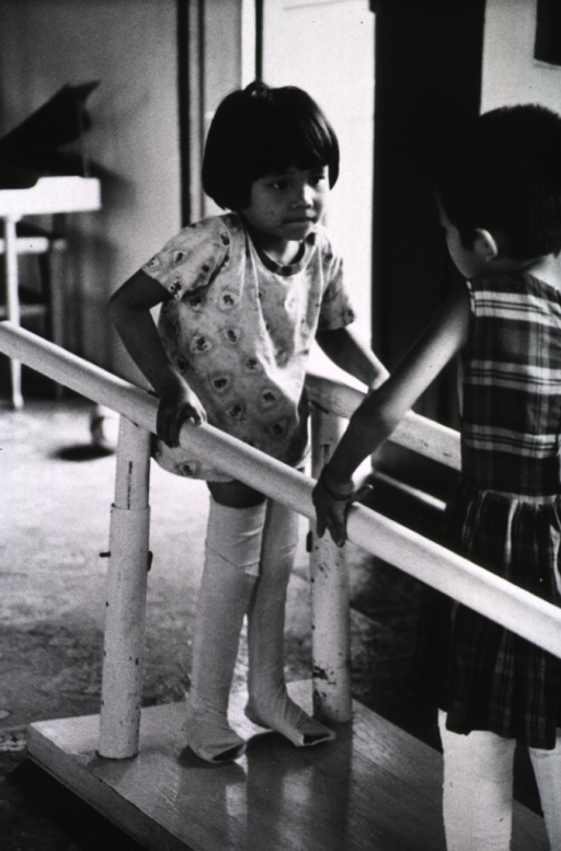 <p>Two young girls with heavily bandaged legs are attempting to walk using the support of parallel bars.</p>