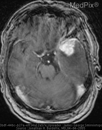 Peripheral enhancing mass - dural based.  Note the extensive intraaxial vasogenic edema.