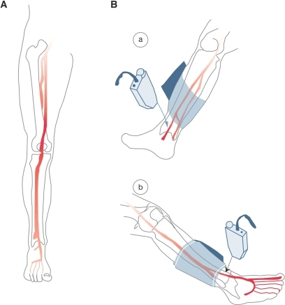 Lower-extremity circulation and the ABI test. A: Anteri | Open-i