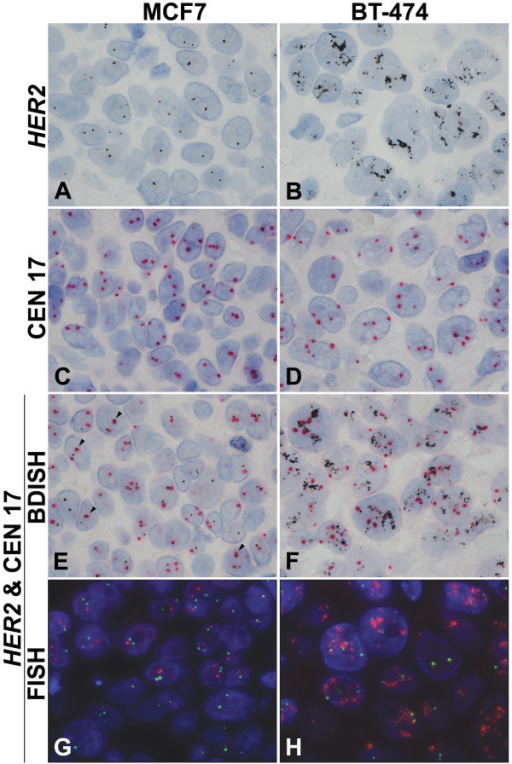 Brightfield in situ hybridization and dual color fluorescence in situ hybridization (FISH) for HER2 and CEN 17. HER2 and CEN 17 detection with formalin-fixed, paraffin-embedded xenograft tumors, MCF7 (non-amplified HER2 gene and chromosome 17 polysomy) (A, C, E, G) and BT-474 (amplified HER2 gene and chromosome 17 polysomy) (B, D, F, H). Normal HER2 gene signal is seen as black dots in the nuclei of MCF7 xenograft tumor (A) while amplified HER2 gene signal is seen as clusters of black dots in the nuclei of BT-474 tumor (B). CEN 17 signal is detected as red dots that are slightly larger than silver black dots (C, D). Double staining of HER2 gene and CEN 17 is obtained with silver grains and red dots (E, F). Individual HER2 gene and CEN 17 signals can be still recognized when both targets are co-localized (arrow heads, E). HER2 FISH signal is red-orange and CEN 17 FISH signal is green in the blue nuclei counterstained with DAPI (G, H). 100×.