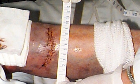Left lower extremity laceration due to contact with car alarm LED