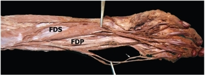 Anterior aspect of the left forearm. FDS: flexor digito ...