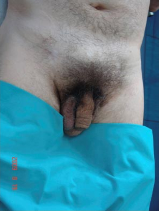 Penectomy Photos http://openi.nlm.nih.gov/detailedresult.php?img=2895219_cde0001-0093-f03&req=4