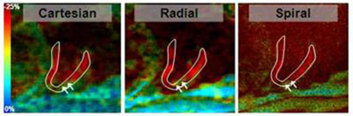 SENC two-chamber images from Cartesian (left), Radial (middle), and Spiral (right) acquisitions showing circumferential strain at end-systole. Carteseian and Radial show similar image quality, while Spiral shows superior resolution. All images show similar contracting pattern in the heart. The arrows point to part of the apical wall showing low strain, which showed in all images.