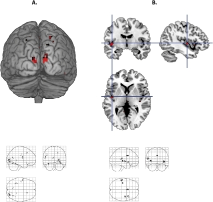 Divergence (sources) of the gradient vectors for face and word processing.(A) Sources for face processing in the occipital cortex. (B) Sources for auditory word processing in the superior temporal cortex.