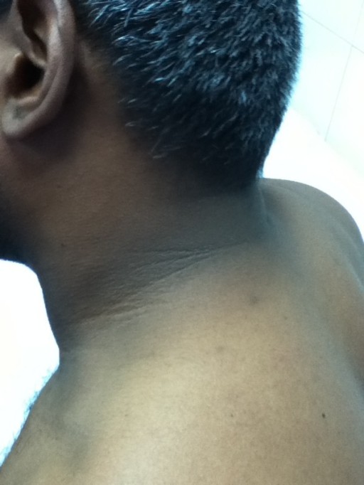 Acanthosis nigricans Grade 3.