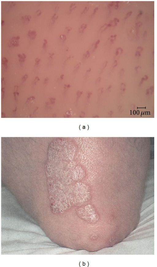 Capillaroscopic image (a) of the centre of the psoriatic plaque (b) at T0.