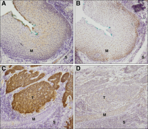 Immunohistochemistry of cellular proteins p16INK4a and pRb. A and C, p16INK4a expression in normal tumor-adjacent mucosa (M) and in tumor (T) tissue, respectively. B and D, pRb expression in normal tumor-adjacent mucosa and in tumor tissue, respectively. S, stroma. Original magnification 10×. p16INK4a low in the normal tumor-adjacent mucosa (blue-stained nuclei (A)), high in the tumor (brown stained nuclei (C)). pRb high in normal tumor-adjacent mucosa (brown-stained nuclei (B)), low in the tumor (blue-stained nuclei (D)).