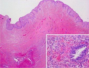 A low power field showing a dermal glandular proliferation of endometrial-type glands surrounded by endometrial stroma (H&E stain: 200×). On the inset, a high power magnification highlighting typical morphologic features of endometriosis (H&E stain: 400×).