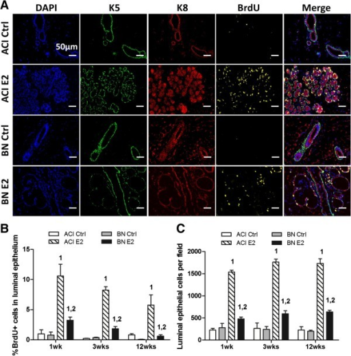 Rat strain-specific effects of 17β-estradiol on mammary epithelial cell proliferation. A, Representative fluorescent images of mammary tissues from ACI and BN rats, either sham treated (Ctrl) or treated with E2 for 1 week (n = 3). Column 1, nuclei identified by staining DNA with 4′,6-diamidino-2-phenylindole (DAPI, blue). Column 2, basal epithelial cells were identified by immunostaining for cytokeratin 5 (K5, green). Column 3, luminal epithelial cells were identified by immunostaining for cytokeratin 8 (K8, red). Colum 4, cells transiting S phase were identified by immunostaining for BrdU (yellow). Column 5, merged images from columns 1 through 4. Scale bars, 50 μm. B, The number of luminal epithelial cells (K8 positive) in S phase (BrdU positive) was quantified using a VectraTM multispectral fluorescence imaging system and illustrated as the percentage of total luminal epithelial cells. C, The number of luminal epithelial cells per field was quantified as an indicator of epithelial density. Each data bar in Panels B and C represents the mean ± standard error of the mean (SEM, n = 3). 1, p < 0.05 for comparison of E2 treated vs. sham treated rats of same strain. 2, p < 0.05 for comparison of E2 treated BN vs. treated ACI rats.