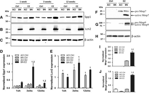 Rat strain-specific effects of 17β-estradiol on protein expression. Representative western blots of protein lysates prepared from mammary glands of ACI and BN rats, treated with E2 for 1, 3 or 12 weeks, and probed with antibody to Spp1 (Panel A), Lcn2 (Panel B) or β-actin (Panel C). The amounts of Spp1 (Panel D) and Lcn2 (Panel E) were quantified using a LI-COR Odyssey system and expressed relative to the amount of β-actin in the same lysate. Representative western blots of protein lysates prepared from mammary glands of ACI and BN rats, treated with E2 for 12 weeks, and probed with antibody to Mmp7 (Panel F), Mmp9 (Panel G) or β-actin (Panel H). The amounts of the proenzymes and active forms of Mmp7 (Panel I) and Mmp9 (Panel J) were quantified using a Bio-Rad ChemiDoc XRS + imaging system and expressed relative to the amount of β-actin in the same lysate. Each data bar represents the mean ± SEM, n = 3 biological replicates. 1, p < 0.05, E2 treated vs. sham treated rats of same strain. 2, p < 0.05, E2 treated BN rats compared to E2 treated ACI rats.