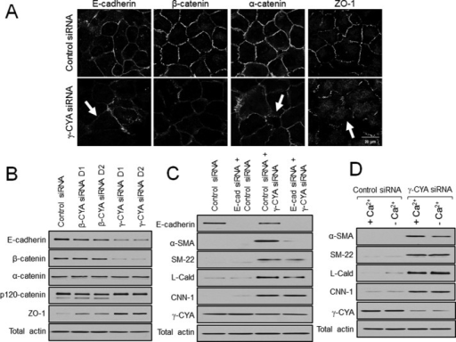 Disassembly of intercellular junctions does not contribute to induction of EMyT in γ-CYA–depleted epithelial cells. A549 cells were transfected with either control or cytoplasmic actin isoform–specific siRNAs. The integrity of cell–cell contacts (A) and expression of junctional proteins (B) were examined on day 4 posttransfection. Arrows highlight disassembly of intercellular junctions in γ-CYA–depleted cells. (C) A549 cells were subjected to sequential transfections with one of the following siRNA pairs: control–control, E-cadherin–control, control–γ-CYA, and E-cadherin–γ-CYA. Expression of targeted proteins and EMyT markers was determined by immunoblotting on day 3 after the second transfection. (D) Control and γ-CYA–depleted A549 cells were either incubated in normal cell culture medium (+Ca2+) or subjected to 24 h of extracellular calcium depletion (–Ca2+) and analyzed for expression of EMyT markers.
