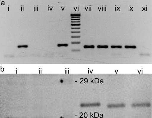 Expression of DPT in epidermis and dermis.(a) Agarose gel images showing DPT PCR products, 168 bp. (i–v) and RPL32 PCR products, 147 bp. (vii–xi). Lanes: i & xi) No template control for DPT and RPL32 respectively, ii & x) NSF, iii & ix) HaCaT cells, iv & viii) Epidermis, v & vii) Dermis, vi) 100 bp DNA ladder. (b) Western blotting analysis of protein homogenates from i) HaCaT cells and ii) epidermis revealing the absence of DPT protein in contrary to the prominent expression in v) dermal and vi) NSF protein extracts. The bands were compared with iv) rDPT and iii) protein molecular weight marker to determine the band size.