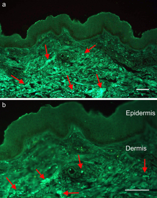Immunofluorescent detection of DPT protein in normal skin sections.(a) Sections treated with FITC conjugated secondary antibody showing strong signals in the dermis (indicated by arrows). ii) Magnified image of the same section revealing the absence of DPT protein in the epidermis. Scale bar – 100 μm.