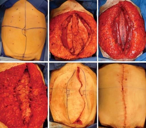 Female patient with a large rectus diastasis undergoing ...