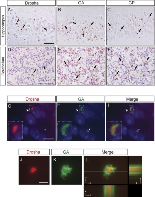 Drosha is a component of dipeptide-repeat (DPR) aggregates. (A–F) Immunohistochemistry (IHC) results for Drosha (A, D), polyGly-Ala (GA) (B, E), and polyGly-Pro (GP) (C, F) proteins in the hippocampus and cerebellum of patients with C9orf72 expansion mutations. Comparative analyses of Drosha, GA, and GP IHC in consecutive brain sections show fewer Drosha-positive inclusions compared with the numbers of GA- and GP-positive aggregates (see examples identified by arrows). (G–L) Double immunofluorescence staining with anti-Drosha (red, G, J, insets) and anti-GA (green, H, K, insets) antibodies in dentate granule neurons shows that Drosha-positive neuronal cytoplasmic inclusions (NCIs) colocalize with GA-immunoreactive aggregates albeit with Drosha in the center of these inclusions that are surrounded by GA positivity (I, arrowhead and inset). Asterisks indicate cell wherein there are GA-positive aggregates that do not contain mislocalized Drosha (G–I). Cell nuclei stained with Dapi (blue). xyz cut of a Drosha-positive NCI (red, J and L) surrounded by GA-immunoreactive material (green, K and L). Scale bars = (G–I) 10 μm; (J–L) 2 μm.