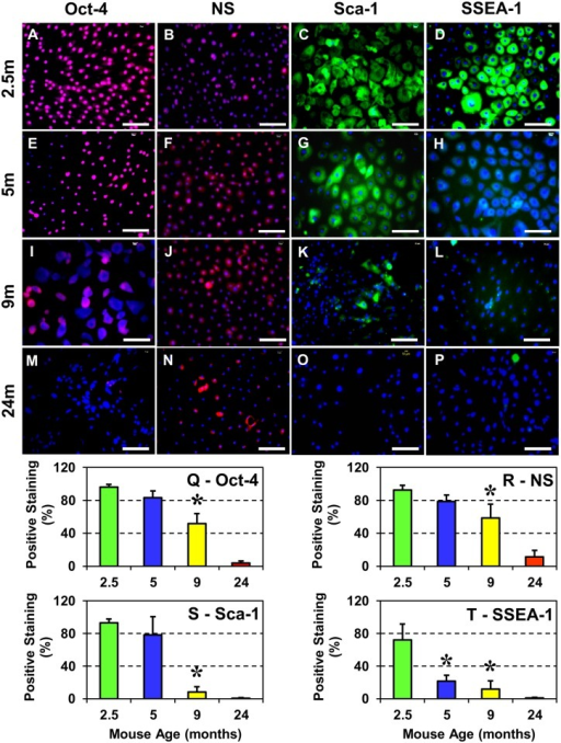 Stem cell marker expression in TSCs from differently aged mice (2.5m–2.5 months; 5m–5 months; 9m–9 months and 24m–24 months).A–P: Immunocytochemical staining for the indicated stem cell markers was performed using stem cell marker specific antibodies. Q–T: Semi-quantitation of stem cell marker expression after immunocytochemical staining. Increase in the mouse age decreased the number of TSCs expressing Oct-4, NS, Sca-1, and SSEA-1. In 24 months old mice, except for a few NS-expressing TSCs, expression of the remaining three stem cell markers (Oct-4, Sca-1 and SSEA-1) was very low. Semi-quantitation data are expressed as mean ± SD. Student's t-test was used to determine statistical significance (*P < 0.05) in comparison with data from the 2.5-months old mice. Bar—100 μm.