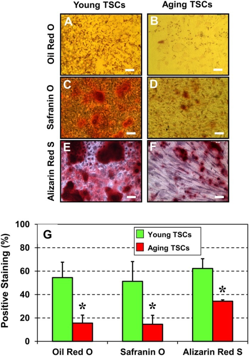 Cytochemical analysis of the non-tenocyte differentiation of TSCs from young (2.5 months) and aging (9 months) mice (G-L).TSCs were analyzed for their ability to undergo multi-differentiation by incubating in specific differentiation induction media and staining with Oil Red O (G, H), Safranin O (I, J) and Alizarin Red S (K, L). Evidently, young TSCs in culture differentiated more extensively into adipocytes (G), chondrocytes (I), osteocytes (K) than their counterparts—aging TSCs (H, J, L). Semi-quantitation (M) of the positively stained regions was performed by analyzing 12 different images of each tendon section. Data are mean ± SD, and *P < 0.05, compared to young TSCs.