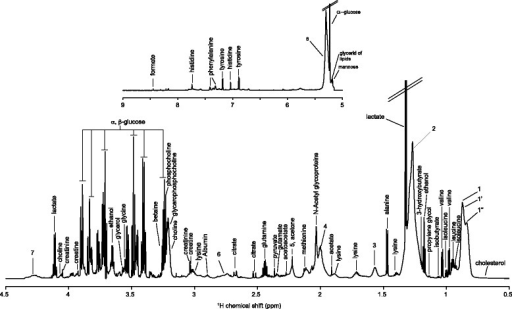 "Mean 1H Carr-Purcell-Meiboom-Gill NMR spectrum of serum samples with metabolite assignment. 1, CH3 bond of lipids, mainly VLDL; 1', CH3 bond of lipids, mainly LDL; 1"", CH3 bond of lipids, mainly HDL; 2, CH2 bond of lipids; 3, CH2-CH2-COOC bond of lipids; 4, CH2-CH = bond of lipids; 5, CH2-CH2-COOC bond of lipids; 6, =CH-CH2-CH = bond of lipids; 7, Lipid O-CH2; 8, CH = CH bond of lipids"