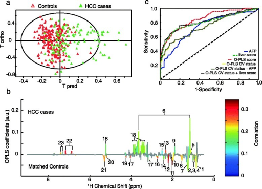 NMR Metabolomic discrimination between HCC cases (n = 114) and matched controls (n = 222) based on 1H Carr-Purcell-Meiboom-Gill NMR data. (a) Orthogonal partial least-square (O-PLS) score plot of NMR spectra, R2 = 35 %, Q2 = 21 %. (b) O-PLS metabolic signature colored according to the correlation between NMR variables and case–control status after significance to ANOVA tests followed by Benjamini-Hochberg multiple correction (non-significant NMR variables are colored in grey). The validation of the model is presented in Additional file 1: Figure S1a. 1, CH3 bond of lipids mainly very-low-density lipoproteins; 2, Leucine; 3, Isoleucine; 4, Valine; 5, Propylene glycol; 6, Ethanol; 7, CH2 bond of lipids; 8, CH2-CH2-COOC bond of lipids; 9, Acetate; 10, CH2-CH = bond of lipids; 11, N-acetyl glycoproteins; 12, Acetone and CH2-CH2-COOC bond of lipids; 13, Glutamate; 14, Glutamine; 15, Citrate; 16, =CH-CH2-CH = bond of lipids; 17, Choline; 18, Glucose; 19, Lipid O-CH2; 20, Mannose and lipids; 21, CH = CH bond of lipids; 22, Tyrosine; 23 Phenylalanine. An equivalent metabolic signature obtained from 1H NOESY NMR data is presented in Additional file 1: Figure S1b. (c) ROC analyses including AFP, liver function score, O-PLS score, O-PLS cross-validated (CV) status, and a combination between O-PLS CV status and AFP or liver function score. The ROC of O-PLS CV status and the combination of O-PLS CV status and AFP overlap. The characteristics of each model are presented in Table 3