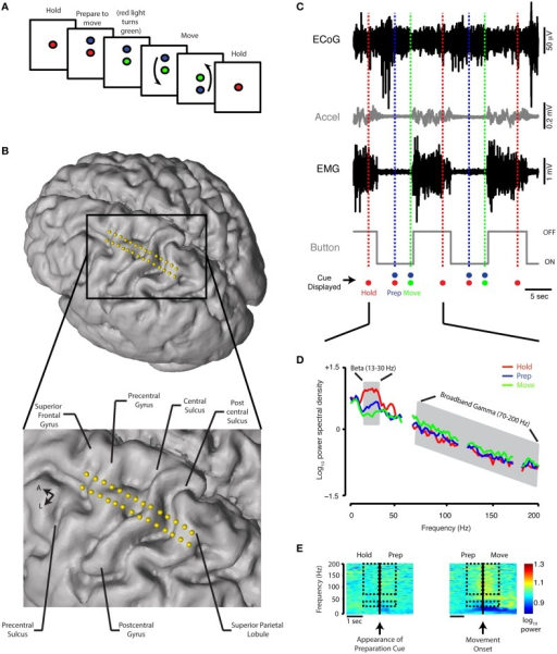 Behavioral task, contact localization, examples of raw data recording, and spectral analysis. (A) Schematic of the reaching task. See Materials and Methods for detailed description. (B) Electrode positions relative to the brain anatomy of a single subject. The cortical surface was reconstructed offline using the preoperative MRI (Statistical Parametric Mapping 8, SPM8). Electrode coordinates (in relation to the midpoint of the line adjoining the anterior and posterior commissures) were then determined by co-registering the preoperative MRI and intraoperative CT scan and mapped onto the cortical surface. (C) A 30-s simultaneous recording of ECoG data (from precentral gyrus), accelerometer position, EMG potential, and button tracing from a single Parkinson's subject. The time scale beneath the button recording indicates 5 s. The recordings are shown in relation to the timing of the HOLD, PREPARATION, and MOVE periods during two trials. Accel, accelerometer; m, milli; sec, second; μ, micro; V, volt. (D) Power spectral density for the HOLD, PREPARATION and MOVE periods are superimposed [average of 20 trials, same subject as (C). The PSD curve for the REST period for this subject is nearly indistinguishable from the HOLD PSD curve and is not shown. Gray shaded areas indicate boundaries of the beta (13–30 Hz) and broadband gamma (70–200 Hz) frequency bands. (E) Spectrograms for task transitions, same ECoG data as depicted in (C). Hashed marks indicate the frequency bands (beta: 13–30 Hz and broadband gamma: 70–200 Hz) and intervals (1 s before and after the appearance of the blue filled circle and movement onset for the HOLD-PREP and PREP-MOVE transitions, respectively) over which spectrogram data are shown for comparison.