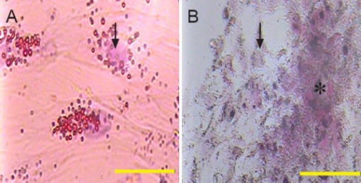 Wharton's jelly mesenchymal stem cells (WJMSCs) had the capability to differentiate into adipocytes (A) and osteocytes (B).Arrows show the nuclei of the cells and star shows calcium deposit. WJMSCs could be stained with oil red S (A) and alizarin red S (B). Scale bars: 50 μm.