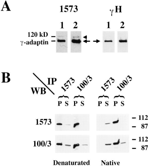Characterization of the polyclonal anti–γ-adaptin antibody. (A) Postnuclear supernatants (lane 1) or total membranes  (lane 2) were prepared from mouse fibroblasts. The samples were  fractionated by SDS-PAGE, transferred to nitrocellulose, and  analyzed by Western blotting using a polyclonal antibody against  a peptide corresponding to the trunk region (1573; right) or  against the hinge region of the mouse γ-adaptin (γ-H; left). (Arrow) γ-Adaptin; (arrowhead) a 120-kD contaminant. (B) γ-Adaptin  was immunoprecipitated from denaturated (left) or native (right)  HeLa cell lysates with either the polyclonal antibody (1573) or  with the mAb 100/3 as described in Materials and Methods. Both  the immunoprecipitated material (P) and a fraction (10%) of the  supernatant of the immunoprecipitations (S) were analyzed by  Western blotting with either the 1573 or the 100/3 antibodies.