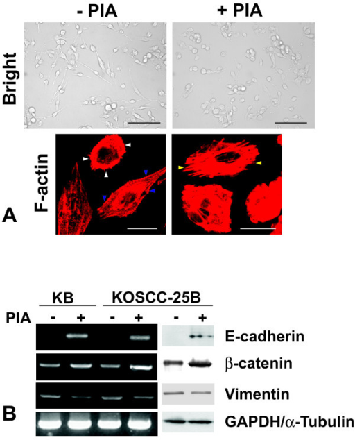 Effects of Akt inhibition on cell morphology and the expression of the epithelial and mesenchymal markers. (A) KOSCC-25B cells had an elongated shape, assuming a fibroblast-like appearance. In contrast, PIA-treated KOSCC-25B cells seemed to restore their epithelial morphology of a polygonal shape. In phalloidin staining, KOSCC-25B cells demonstrated circumferential, cortical actin (blue arrowheads), and actin in elongated filopodia (white arrowheads); however, no actin stress fibers were detected. In contrast, PIA-treated cells revealed an abudance of actin stress fibers (yellow arrowheads). Scale bar: 100 μm (black), 20 μm (white). (B) Inhibition of Akt activity increased the expression of E-cadherin and β-catenin, and reduced the Vimentin expression in KB and KOSCC-25B cells.